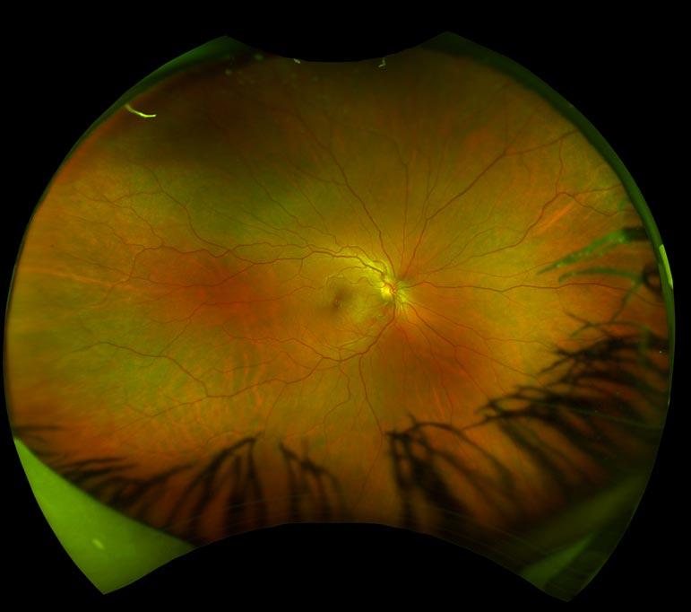 OptoMap Image